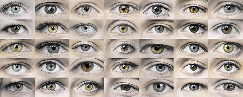 פיצויים - עיניים